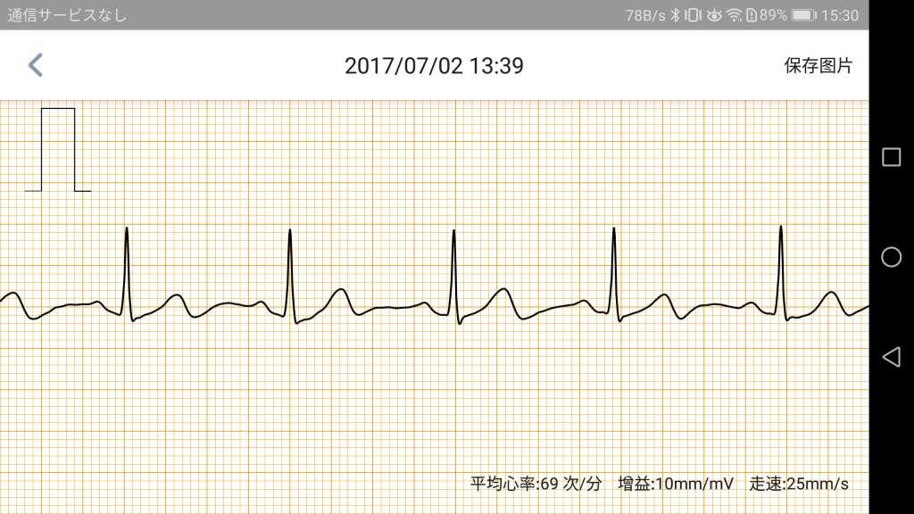 米动健康(AMAZFIT Health) アプリ 心血管健康指標 パルス